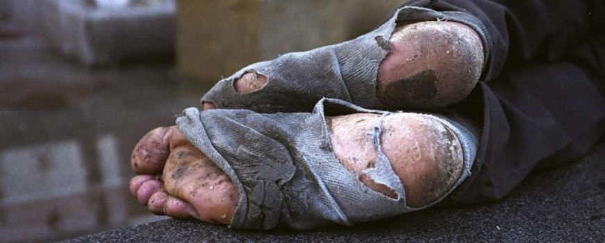 homeless feet